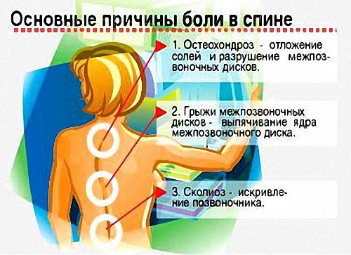 Ошибки приводящие к появлению болей в спине